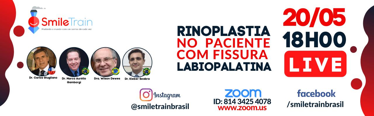 Rinoplastía en pacientes fisurados